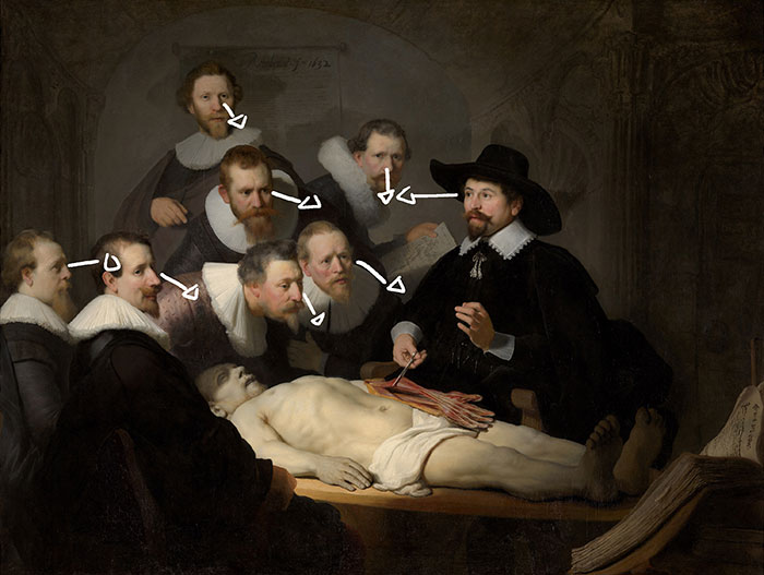 Rembrandt, Rembrandt, The Anatomy Lesson of Dr Nicolaes - Arrows