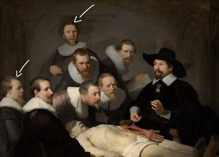 Rembrandt, The Anatomy Lesson of Dr Nicolaes - Added Later