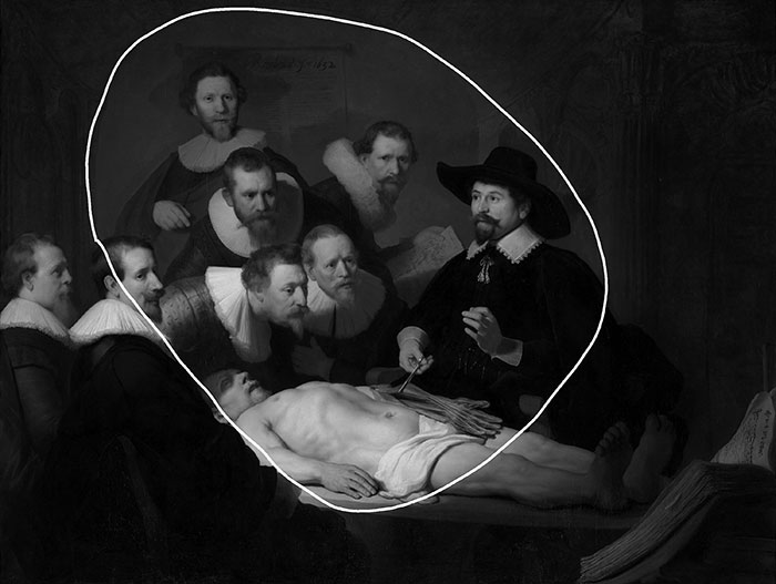 Rembrandt, The Anatomy Lesson of Dr. Nicolaes Tulp, 1632 - Light Oval